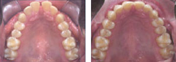 Tooth Straightening Henderson