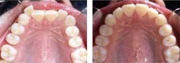 Tooth Straightening Las Vegas