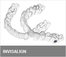 invis-feature