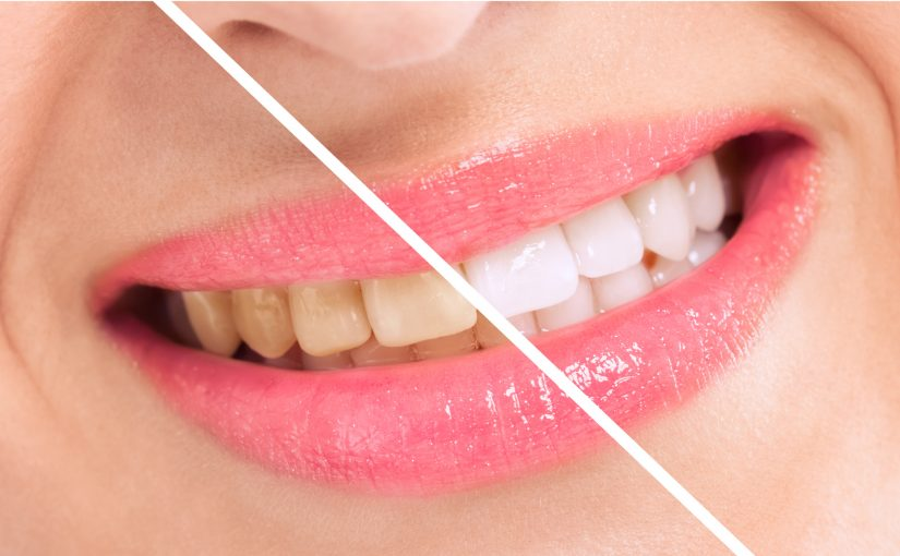 Teeth Whitening Methods To Enhance Your Smile